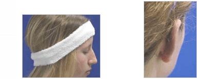 ניתוח הצמדת אוזניים תמונות לפני ואחרי