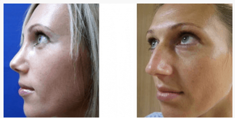 """ניתוח אף - תמונות לפני ואחרי - ד""""ר שלמה צרפתי"""