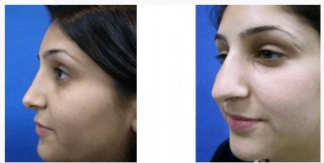 """ניתוחי אף - לפני ואחרי - ד""""ר שלמה צרפתי"""