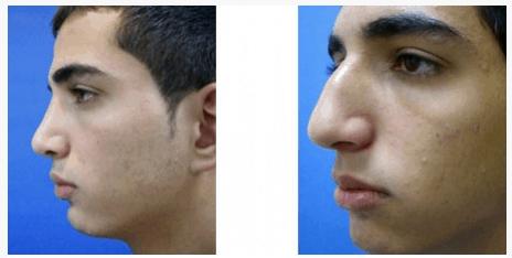 """ניתוח אף - לפני ואחרי - ד""""ר שלמה צרפתי"""