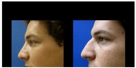 """ניתוח באף - ד""""ר שלמה צרפתי"""